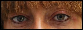 Eyeline