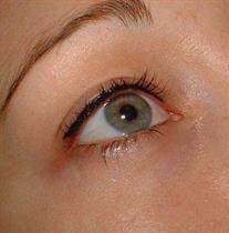 Eyeline över