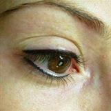 Eyeline över och under