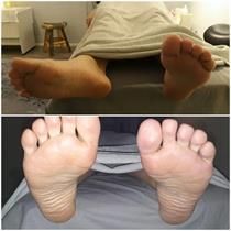 Asiakkaan jalat ennen ja jälkeen