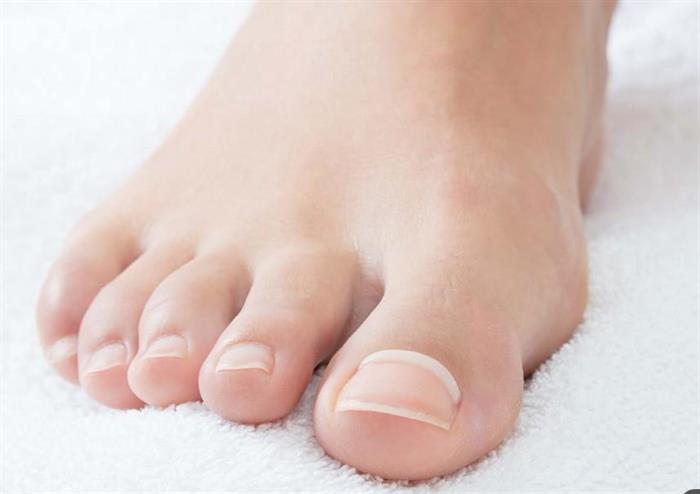 ONYFIX smärtfri nagelkorrektion för att motverka nageltrång