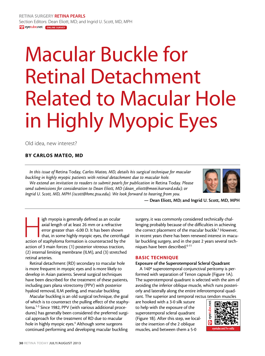Macular buckle Retina Today article